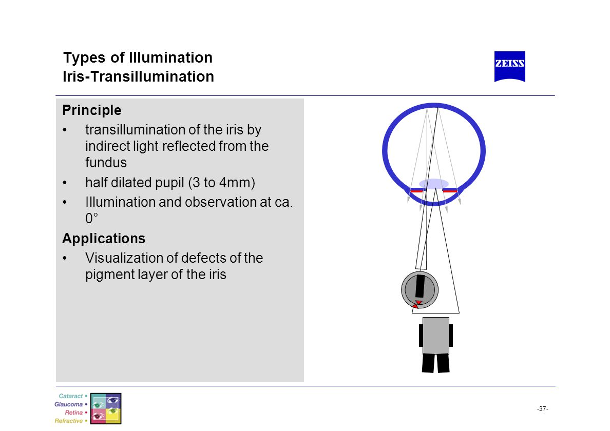 -37- Types of Illumination Iris-Transillumination Principle transillumination of the iris by indirect light reflected from the fundus half dilated pup