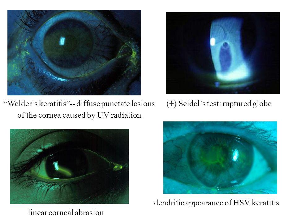 (+) Seidels test: ruptured globeWelders keratitis-- diffuse punctate lesions of the cornea caused by UV radiation dendritic appearance of HSV keratiti