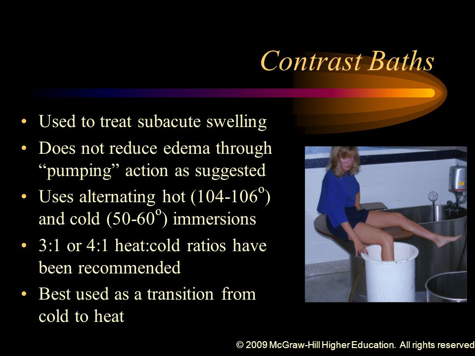 © 2009 McGraw-Hill Higher Education. All rights reserved. Contrast Baths Used to treat subacute swelling Does not reduce edema through pumping action