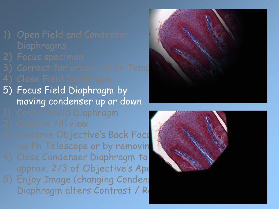 1)Open Field and Condenser Diaphragms 2)Focus specimen 3)Correct for proper Color Temperature 4)Close Field Diaphragm 5)Focus Field Diaphragm by movin