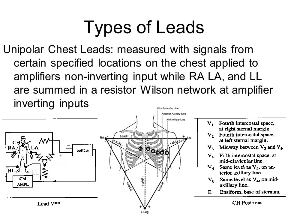 Types of Leads Unipolar Chest Leads: measured with signals from certain specified locations on the chest applied to amplifiers non-inverting input whi