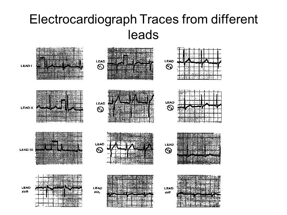 Electrocardiograph Traces from different leads