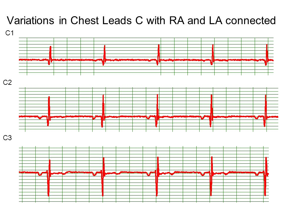 Variations in Chest Leads C with RA and LA connected C1 C2 C3