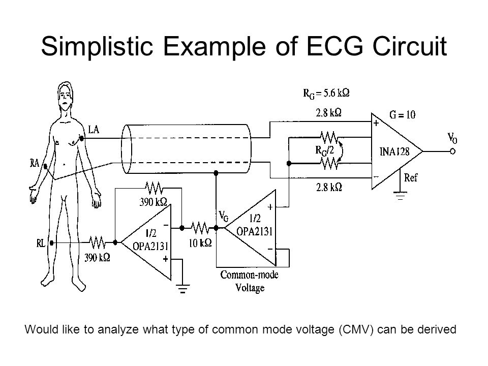 Simplistic Example of ECG Circuit Would like to analyze what type of common mode voltage (CMV) can be derived