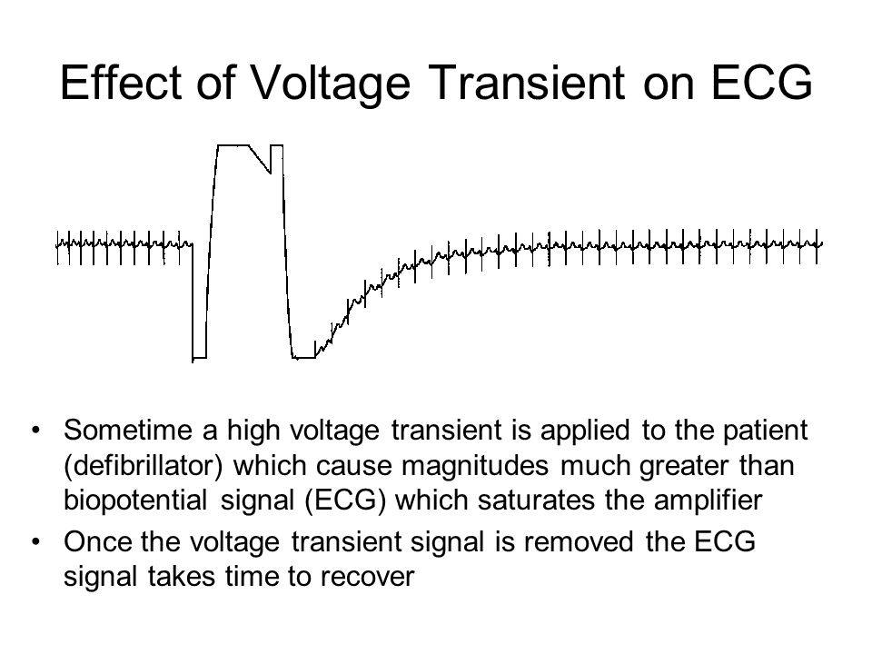 Effect of Voltage Transient on ECG Sometime a high voltage transient is applied to the patient (defibrillator) which cause magnitudes much greater tha