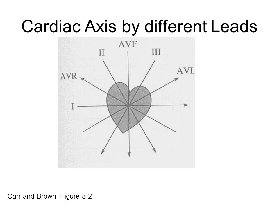 Cardiac Axis by different Leads Carr and Brown Figure 8-2
