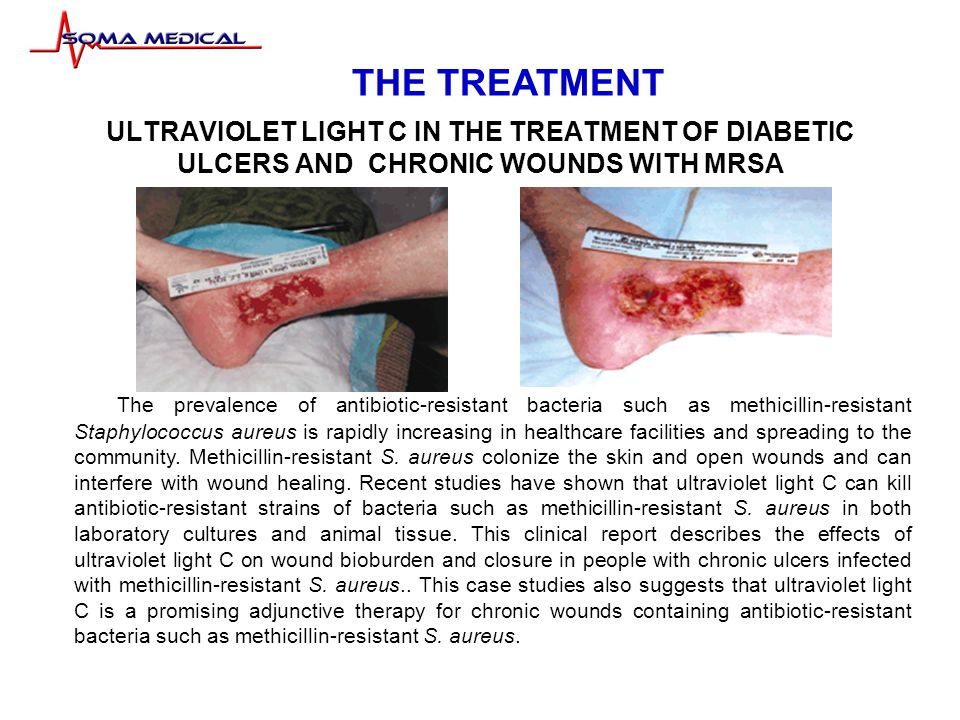 ULTRAVIOLET LIGHT C IN THE TREATMENT OF DIABETIC ULCERS AND CHRONIC WOUNDS WITH MRSA The prevalence of antibiotic-resistant bacteria such as methicillin-resistant Staphylococcus aureus is rapidly increasing in healthcare facilities and spreading to the community.