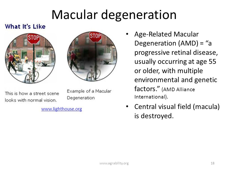 Macular degeneration Age-Related Macular Degeneration (AMD) = a progressive retinal disease, usually occurring at age 55 or older, with multiple environmental and genetic factors.
