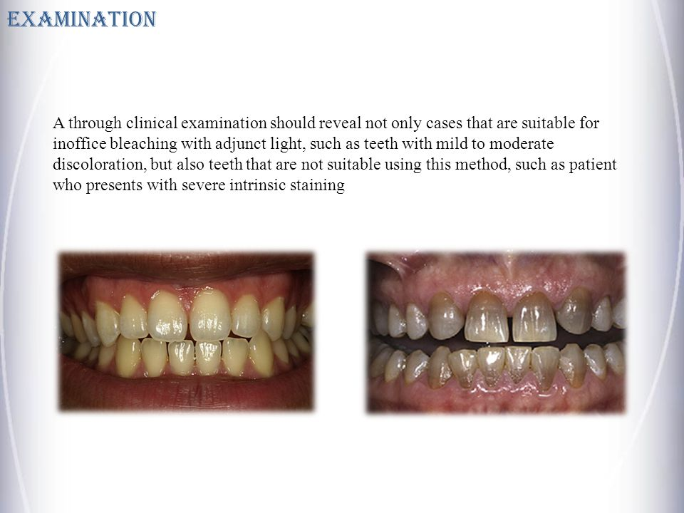 Examination A through clinical examination should reveal not only cases that are suitable for inoffice bleaching with adjunct light, such as teeth with mild to moderate discoloration, but also teeth that are not suitable using this method, such as patient who presents with severe intrinsic staining