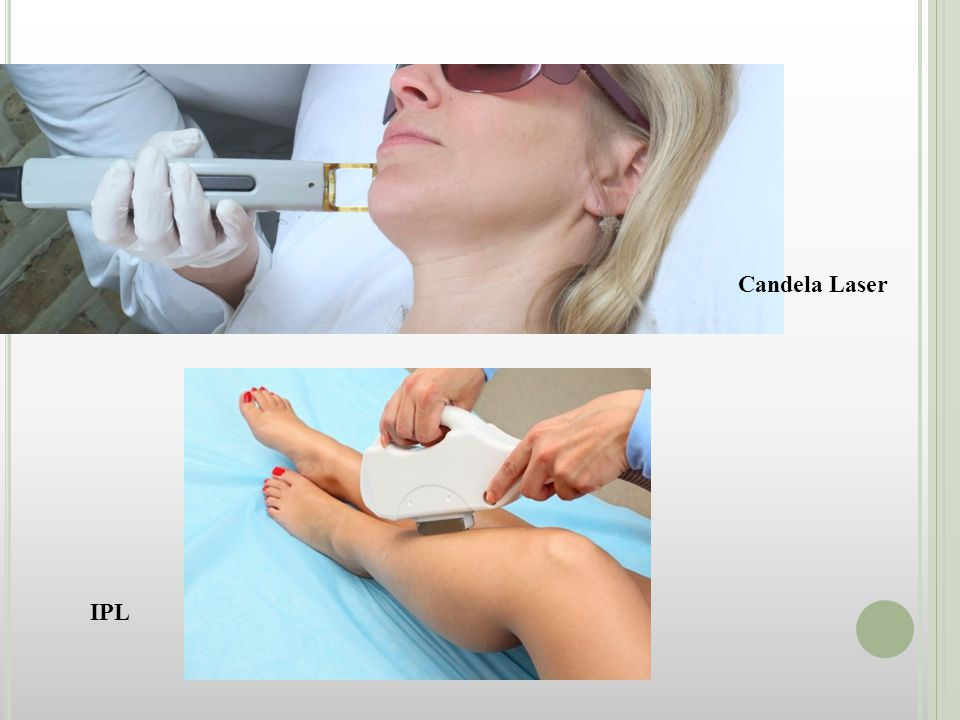 Candela LasersIntense Pulsed Light -Class 4 non ablative laser specifically for hair removal.