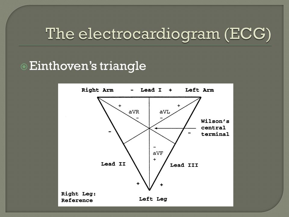 The ECG is an electrical signal (function of time)
