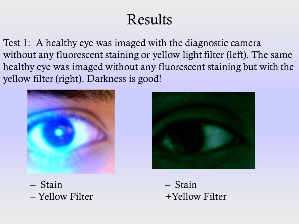 Results Test 1: A healthy eye was imaged with the diagnostic camera without any fluorescent staining or yellow light filter (left). The same healthy e