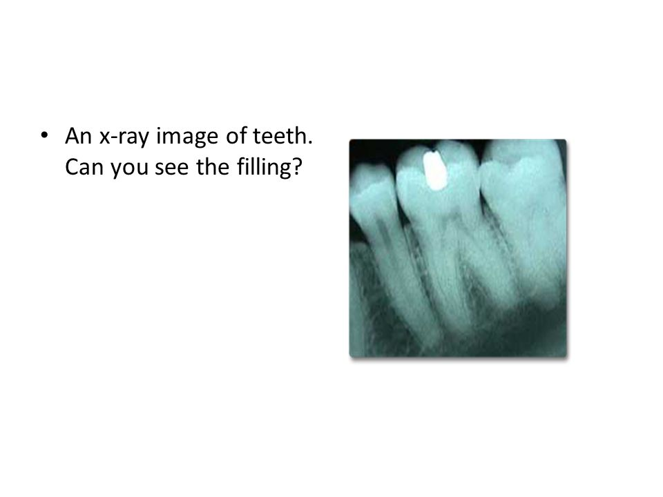 An x-ray image of teeth. Can you see the filling