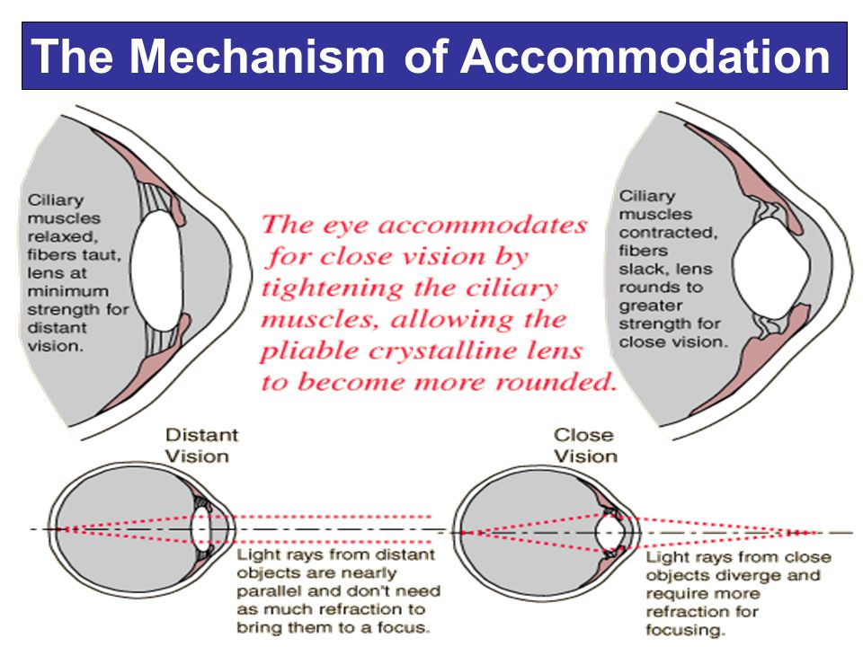 Understanding Natural Accommodation The lens increases in thickness and the anterior chamber shallows.