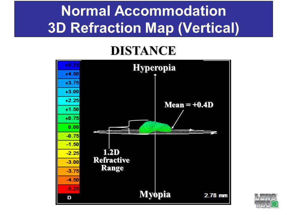 Normal Accommodation 3D Refraction Map (Vertical) DIFFERENCE NEAR DISTANCE