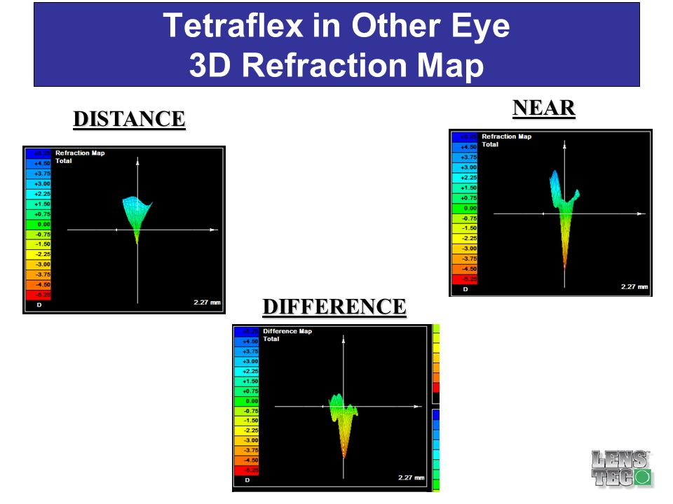 DIFFERENCE No Refractive Difference 0.6D Refractive RefractiveRange