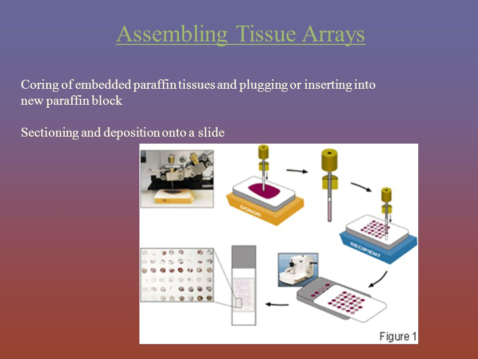 Assembling Tissue Arrays Coring of embedded paraffin tissues and plugging or inserting into new paraffin block Sectioning and deposition onto a slide