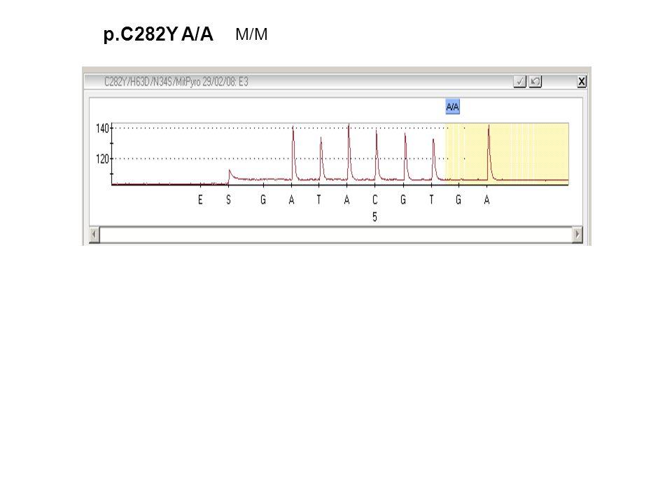 p.C282Y A/A M/M