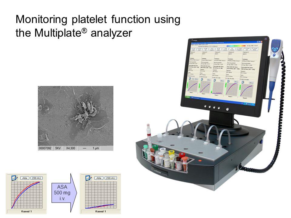 ASA 500 mg i.v. Monitoring platelet function using the Multiplate ® analyzer