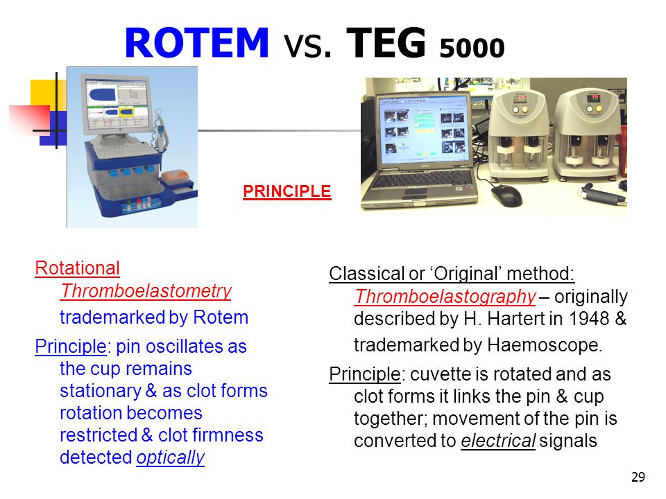 29 ROTEM vs. TEG 5000 Classical or Original method: Thromboelastography – originally described by H. Hartert in 1948 & trademarked by Haemoscope. Prin
