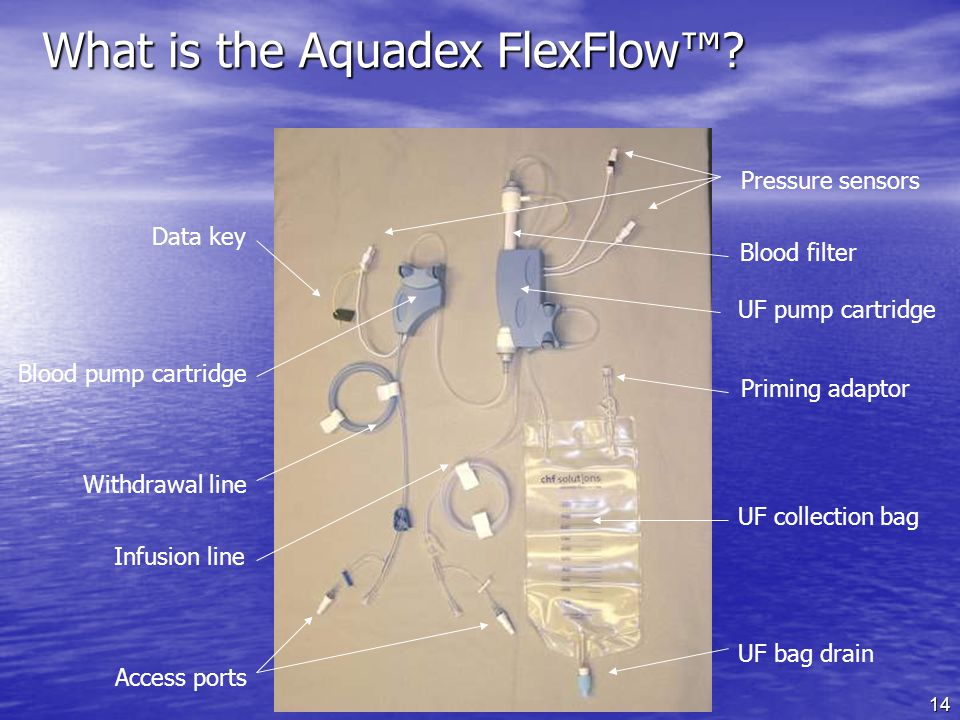 14 What is the Aquadex FlexFlow.