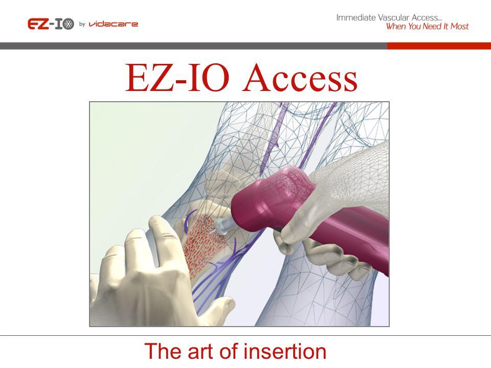 EZ-IO Access The art of insertion