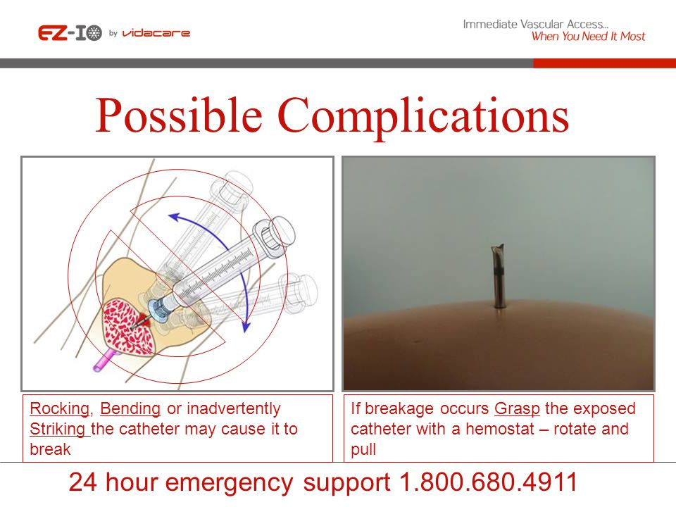 Possible Complications If breakage occurs Grasp the exposed catheter with a hemostat – rotate and pull Rocking, Bending or inadvertently Striking the