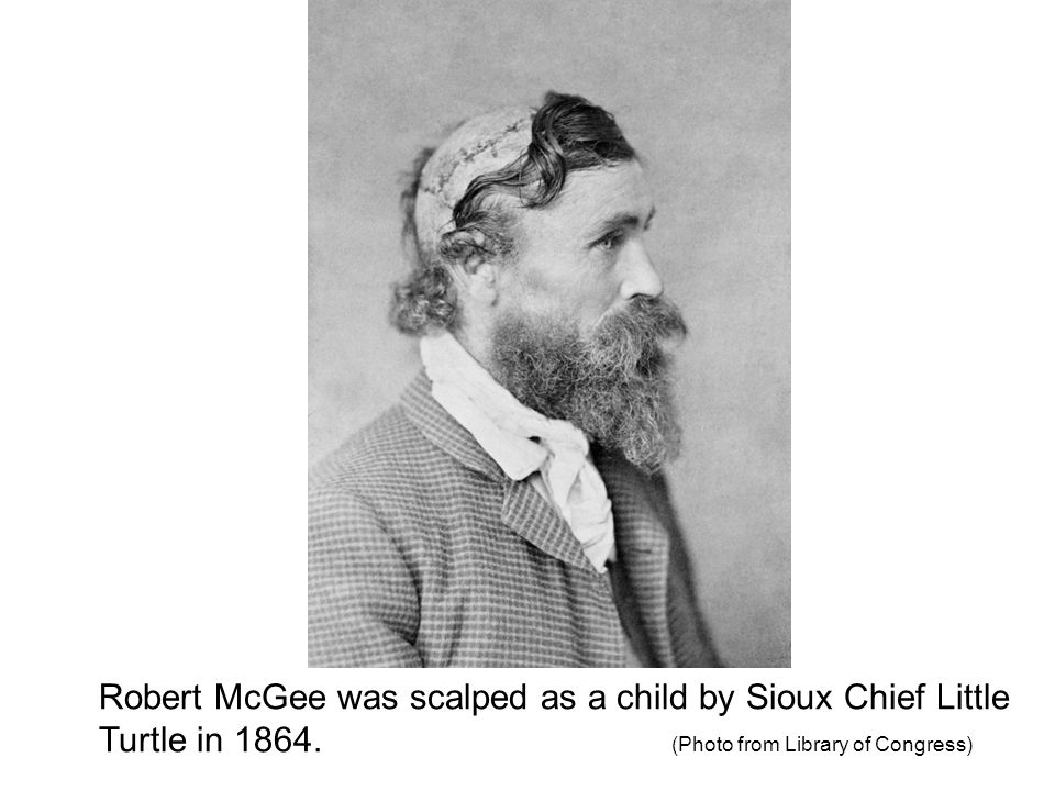 Robert McGee was scalped as a child by Sioux Chief Little Turtle in 1864.