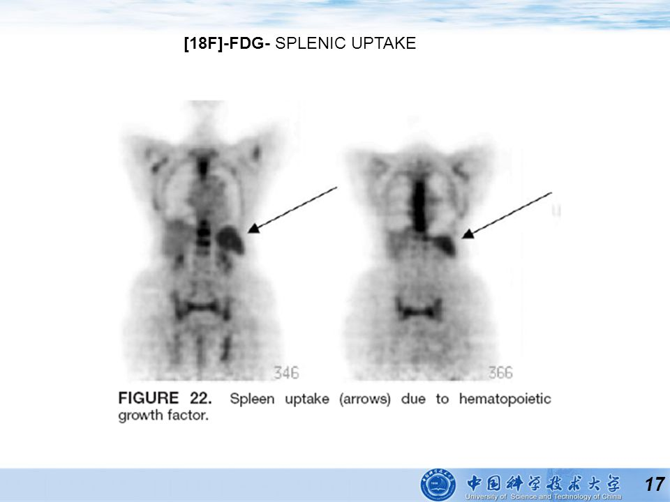 17 [18F]-FDG- SPLENIC UPTAKE