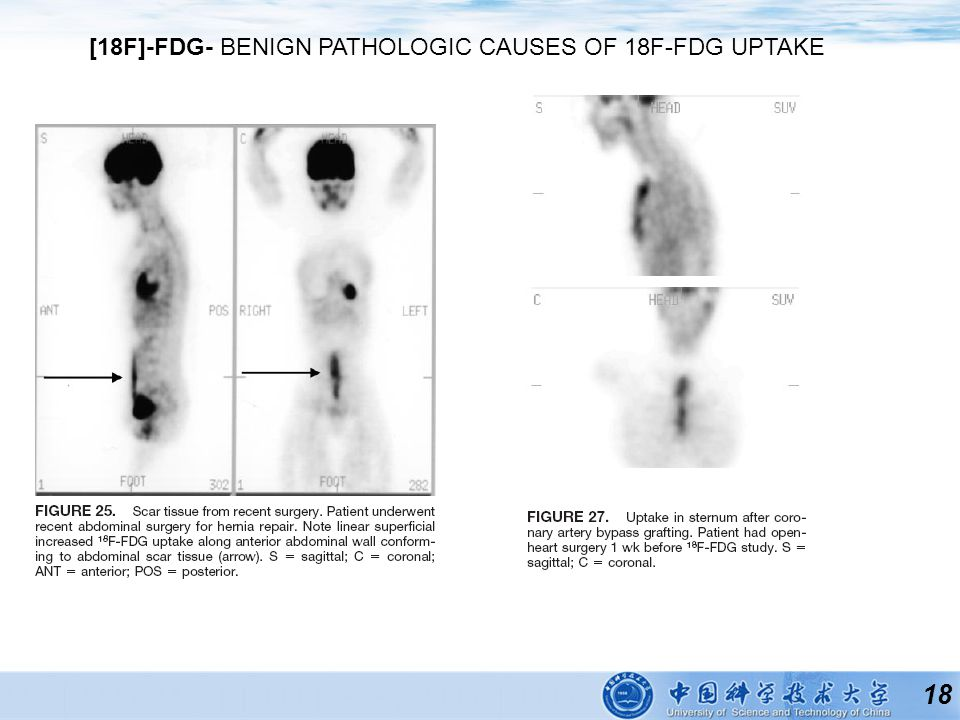 18 [18F]-FDG- BENIGN PATHOLOGIC CAUSES OF 18F-FDG UPTAKE