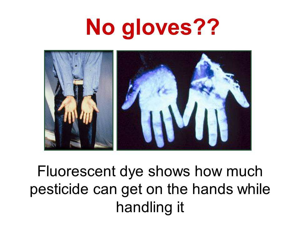 No gloves?? Fluorescent dye shows how much pesticide can get on the hands while handling it