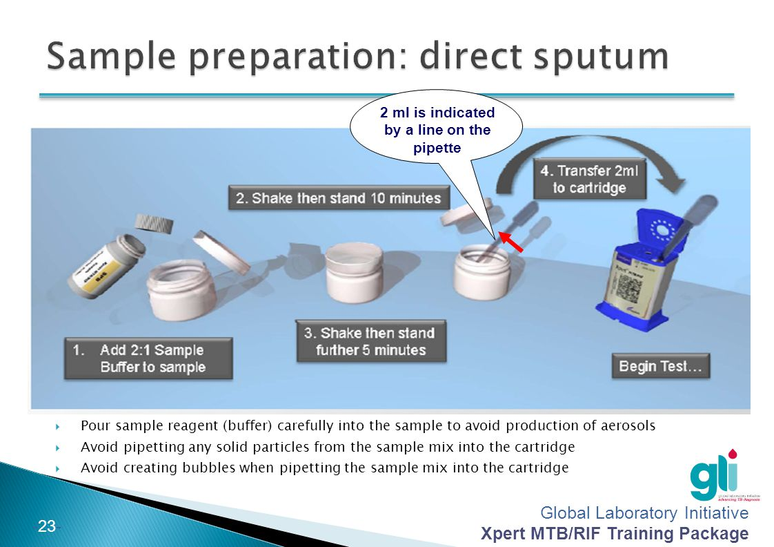 Global Laboratory Initiative Xpert MTB/RIF Training Package -23- 2 ml is indicated by a line on the pipette Pour sample reagent (buffer) carefully int