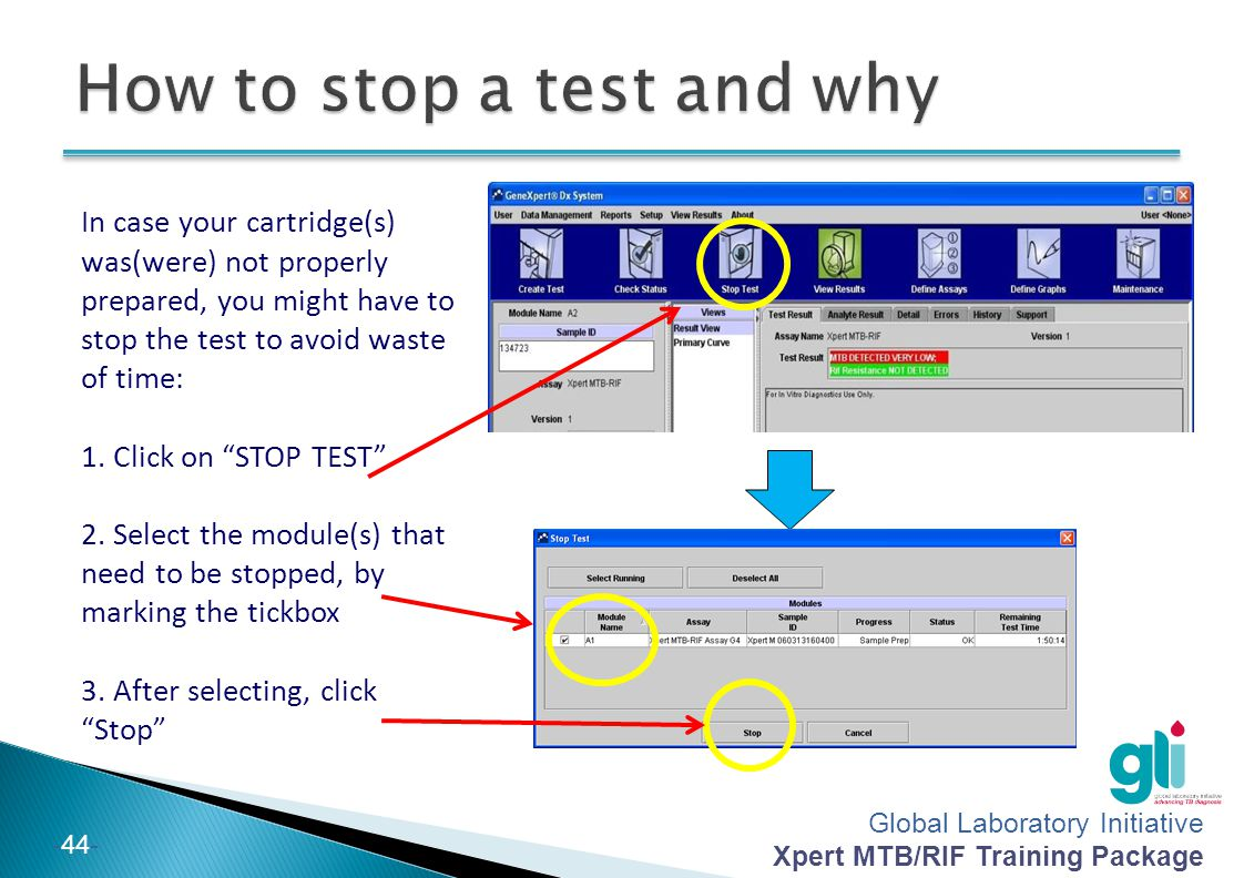Global Laboratory Initiative Xpert MTB/RIF Training Package -44- In case your cartridge(s) was(were) not properly prepared, you might have to stop the