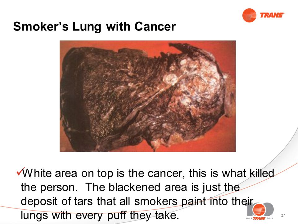 27 Smokers Lung with Cancer White area on top is the cancer, this is what killed the person.