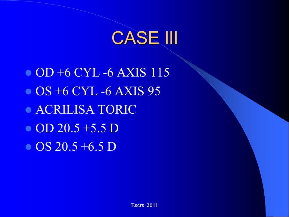 CASE III OD +6 CYL -6 AXIS 115 OS +6 CYL -6 AXIS 95 ACRILISA TORIC OD 20.5 +5.5 D OS 20.5 +6.5 D Escrs 2011