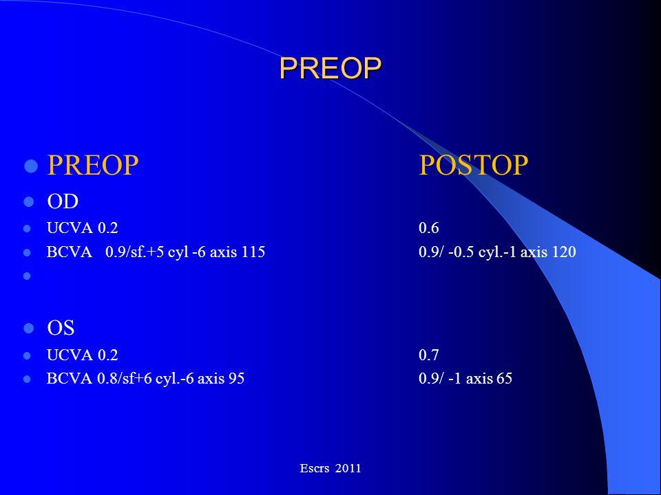 PREOP PREOP POSTOP OD UCVA 0.20.6 BCVA 0.9/sf.+5 cyl -6 axis 1150.9/ -0.5 cyl.-1 axis 120 OS UCVA 0.20.7 BCVA 0.8/sf+6 cyl.-6 axis 950.9/ -1 axis 65 E