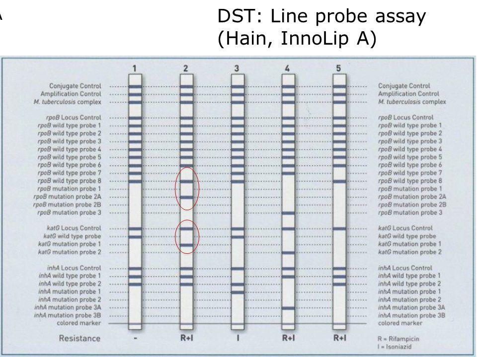 DST: Line probe assay (Hain, InnoLip A) Hain Lifescience GenoType® MTBDRplus Clinical samples (sens, spec): Rif (99; 99%) INH (85; 99)% Smear positive samples Morgan M, BMC Infect Dis, 2005; Ling D, Eur Resp J, 2008 Barnard M, AJRCCM, 2008 Hain MTBDRplus (version 2.0) In 104 smear-ve culture +ve sputum samples combined sensitivity (80%) and specificity (99%) Crudu V, J Clin Micro, 2012 A