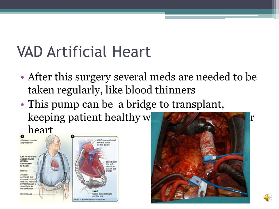 VAD Artificial Heart Ventricular Assist Devices (VAD) Does not replace heart, works along side it Mechanical pump Surgically implanted next to heart Runs on power from a battery pack that you carry at your side, constantly helping your heart to pump blood Attached to left ventricle and to aorta Works by helping heart pump blood from left ventricle into aorta Then the blood circulates through the body