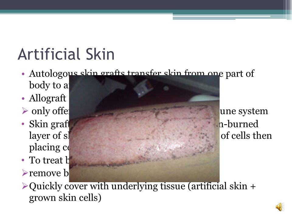 Artificial Skin Theres an artificial skin system called Integra Its an artificial substance that contains no living components Not designed to replace skin Rather supplies protective covering and pliable scaffold onto which a persons own skin cells can regenerate on the destroyed layer or skin.