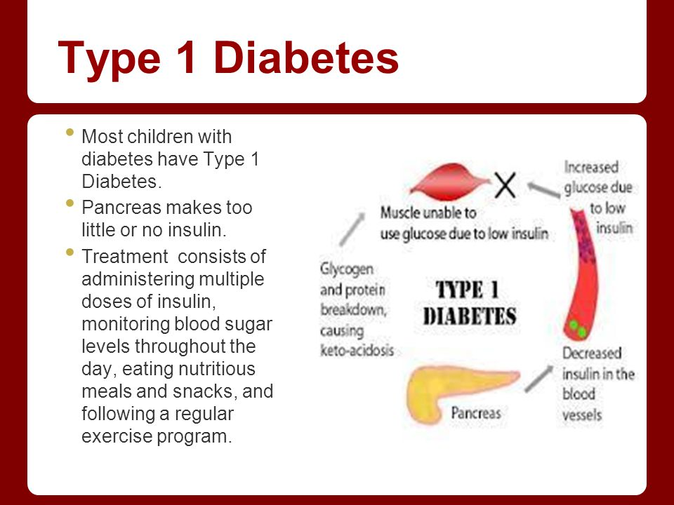 Type 1 Diabetes Most children with diabetes have Type 1 Diabetes. Pancreas makes too little or no insulin. Treatment consists of administering multipl