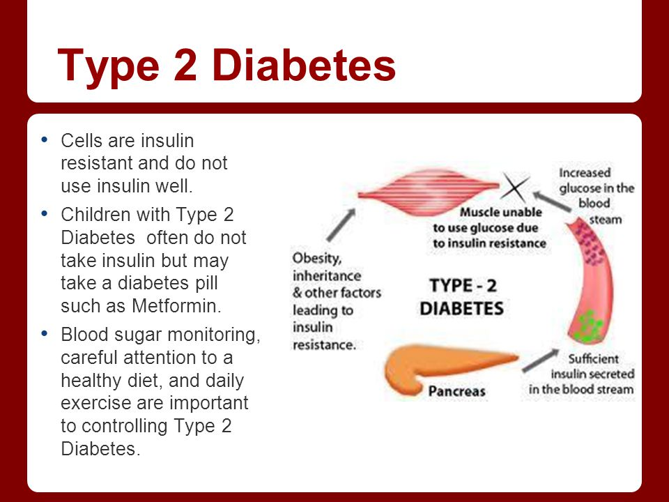 Type 2 Diabetes Cells are insulin resistant and do not use insulin well. Children with Type 2 Diabetes often do not take insulin but may take a diabet