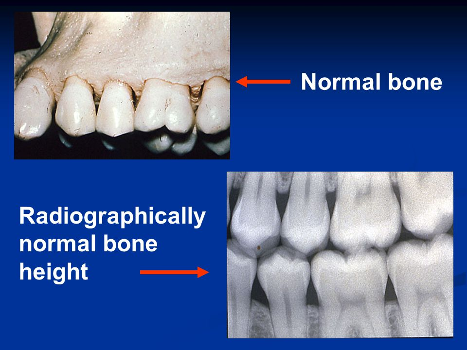 Normal bone Radiographically normal bone height