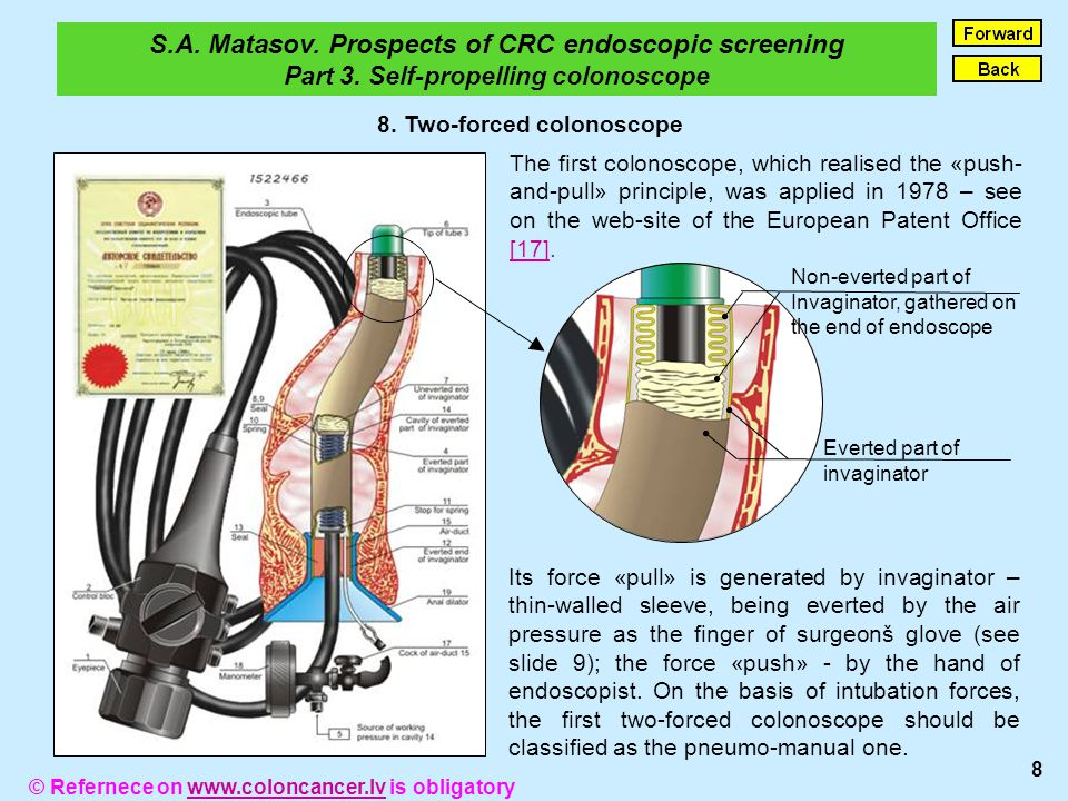 Due to invaginators evertion and rolling on mucosa of large intestin, the two-forced colonoscope is an atraumatic mean.