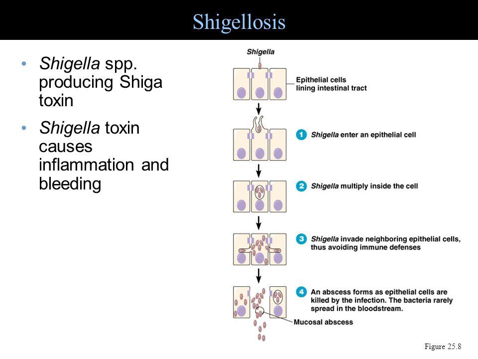 Shigellosis Figure 25.8 Shigella spp. producing Shiga toxin Shigella toxin causes inflammation and bleeding