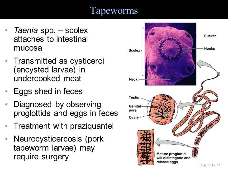 Tapeworms – cysticerci can occur in many tissues Figure 25.22