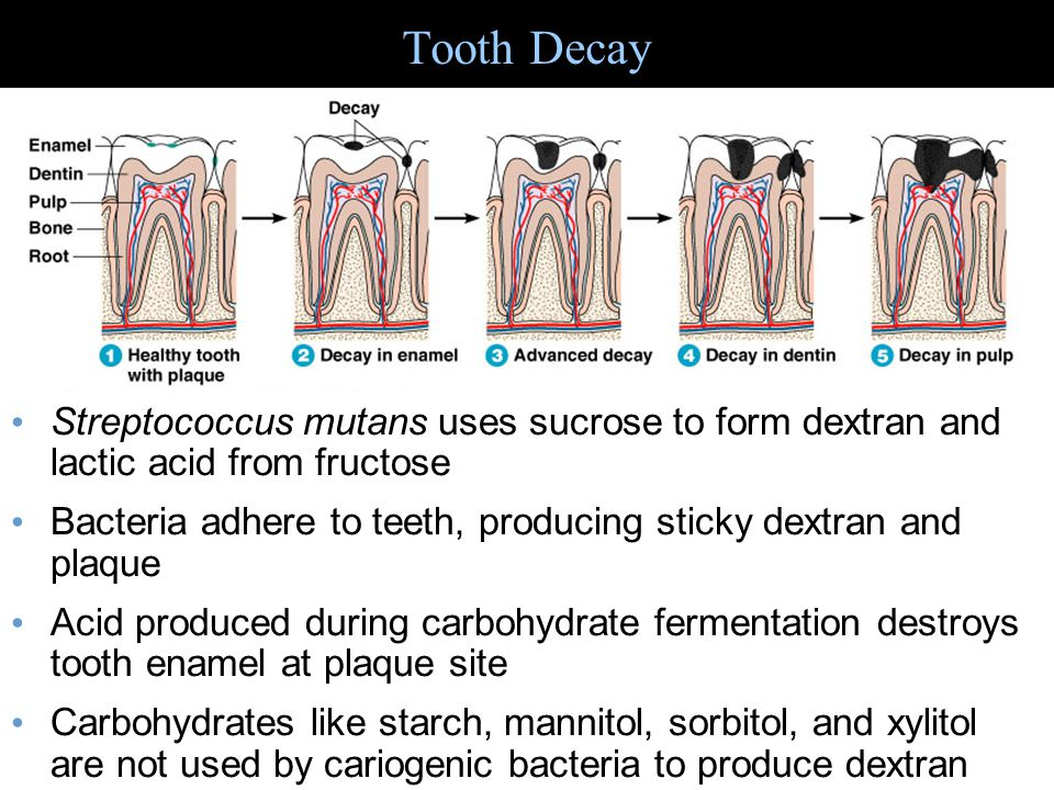 Periodontal Disease Figure 25.5 Caries of the cementum and gingivitis cause by streptococci, actinomycetes, anaerobic gram-negative bacteria Perodontitis can cause bone destruction, tooth loss – is due to inflammatory response to variety of bacteria growing on gums Acute necrotizing ulcerative gingivitis caused by Prevotella intermedia and spirochetes (doesnt sound like fun!)
