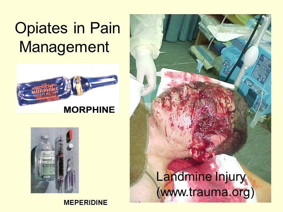 Landmine Injury (www.trauma.org) Opiates in Pain Management MEPERIDINE