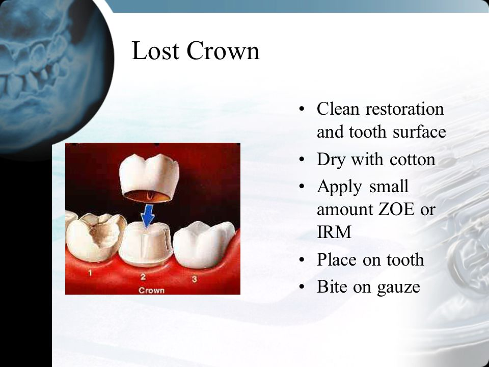 Lost Crown Clean restoration and tooth surface Dry with cotton Apply small amount ZOE or IRM Place on tooth Bite on gauze