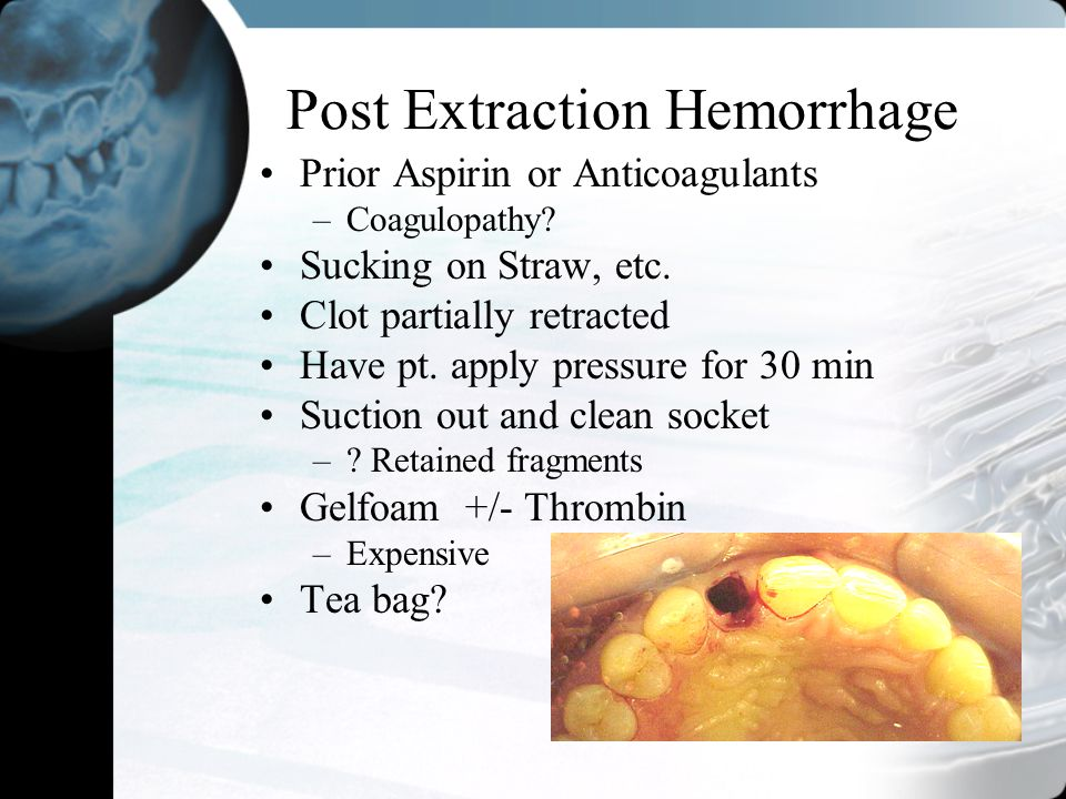 Post Extraction Hemorrhage Prior Aspirin or Anticoagulants –Coagulopathy? Sucking on Straw, etc. Clot partially retracted Have pt. apply pressure for