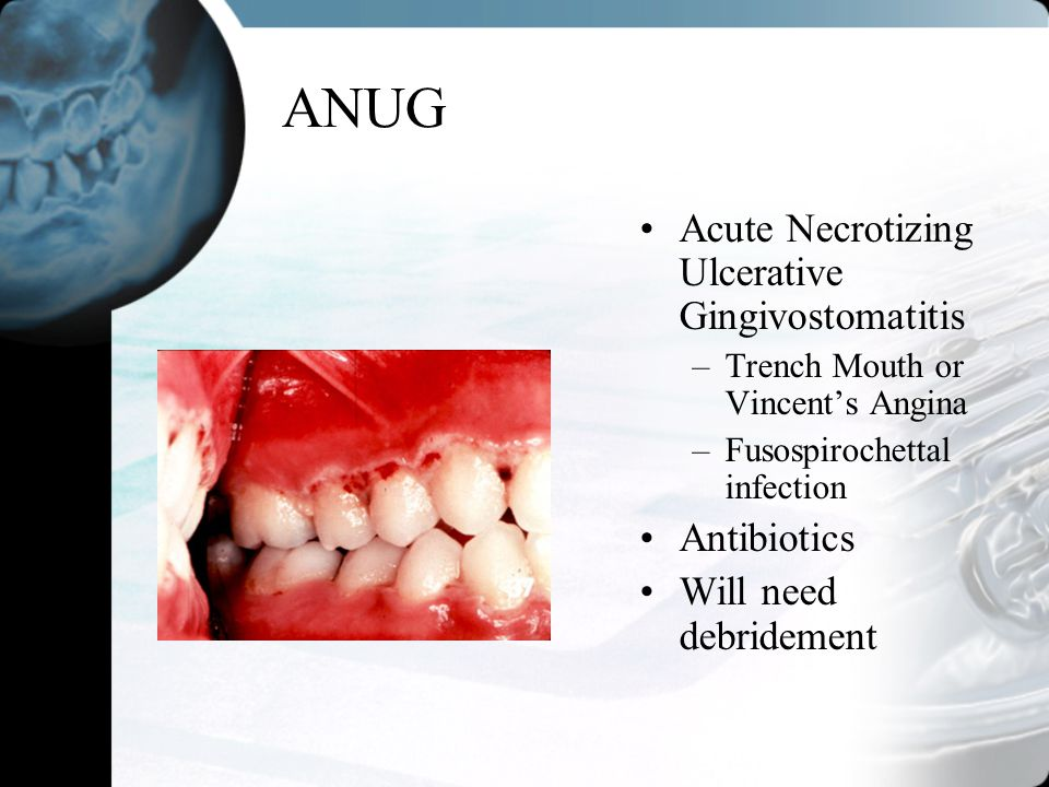 ANUG Acute Necrotizing Ulcerative Gingivostomatitis –Trench Mouth or Vincents Angina –Fusospirochettal infection Antibiotics Will need debridement